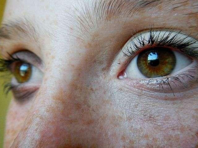 ojo seco tratamiento natural