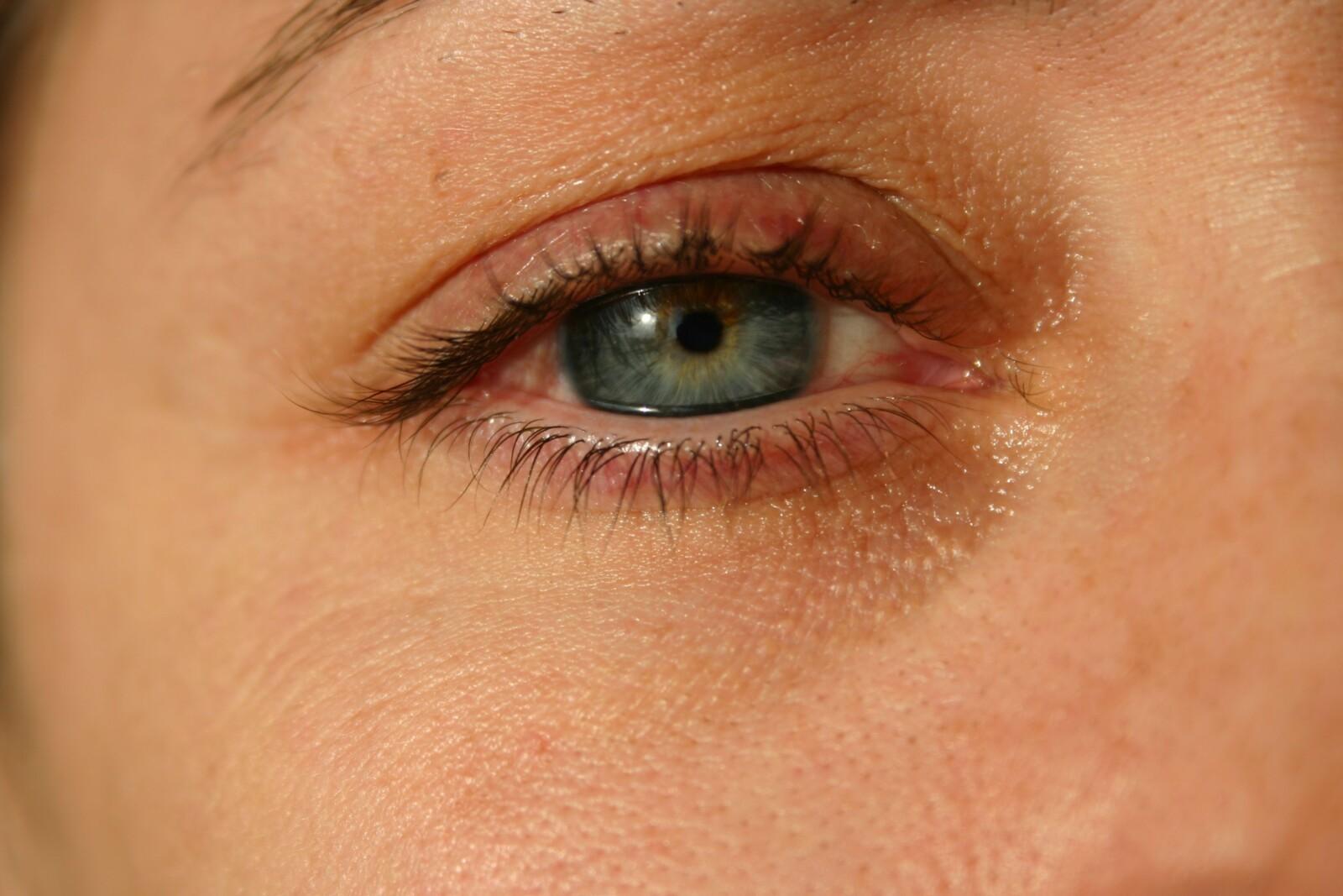 tratamiento de edema periorbitario alérgico