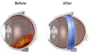 En el esquema de la izquierda la retina está desprendida abajo. En el ojo de la derecha la capa más externa se ha llevado hacia el centro mediante el anillo azul que comprime y junta las capas más externas con la retina desprendida.