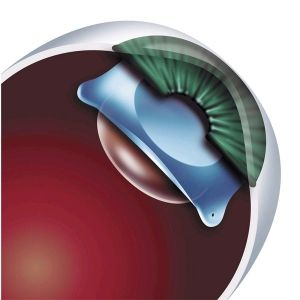 ente intraocular ICL