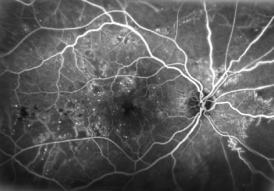 Deterioro de la retina por la diabetes