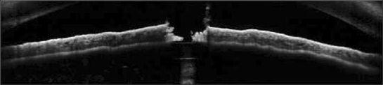 Valoración de una aplicación láser en el iris con Spectralis