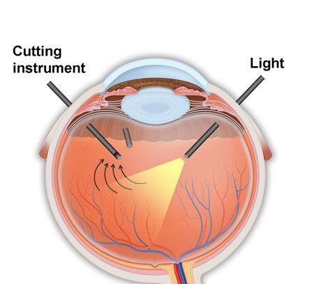 cirugia-agujero-macular