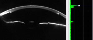 Las células están pegadas en la cara interna de la córnea de forma imperceptible.
