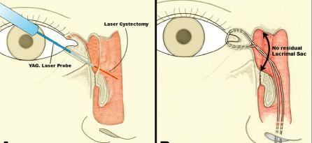 Dacriocistorrinostomía