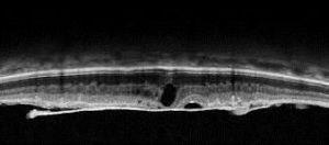 membrana epirretiniana 2