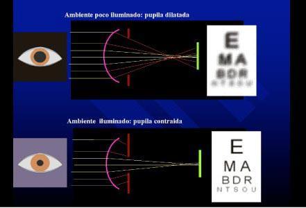 miopía, hipermetropía, astigmatismo y aberración esférica