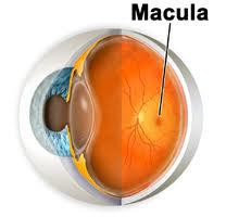 tratamiento para edema macular