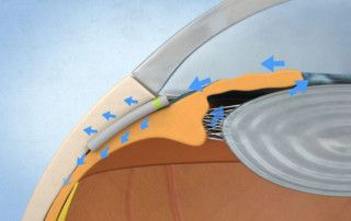 Miniject cirugía microinvasiva del glaucoma - Novovisión