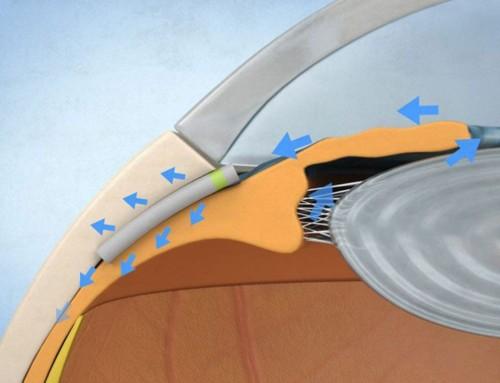 Miniject, una opción prometedora para el tratamiento del glaucoma