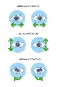 Nistagmo - Tipos y tratamientos - Novovisión