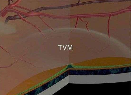 TVM - Novovisión