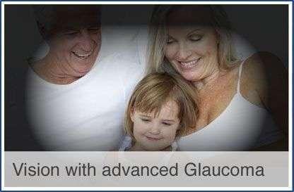 Visión con glaucoma avanzado - Novovisión