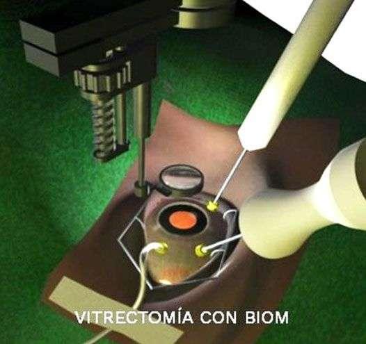 Vitrectomía con BIOM - Novovisión