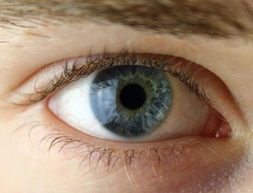 ¿Qué ocurre en la corrección visual con láser cuando existe diferente graduación entre ambos ojos?