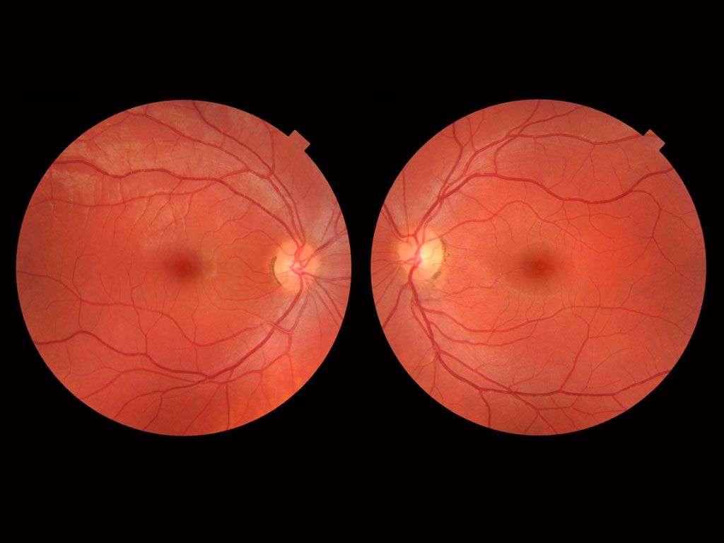 retinografía como metodo diagnostico frente a determinadas patologias