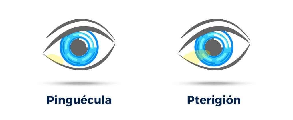 pinguécula y pterigión