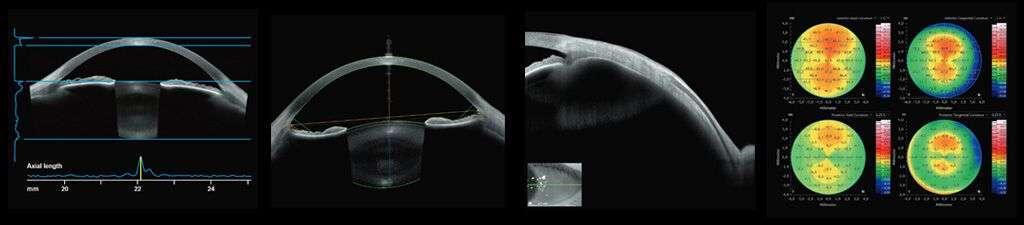 Situaciones en las que la Tomografía de Coherencia Óptica se considera necesaria