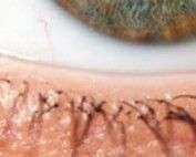 Microexfoliación Palpebral