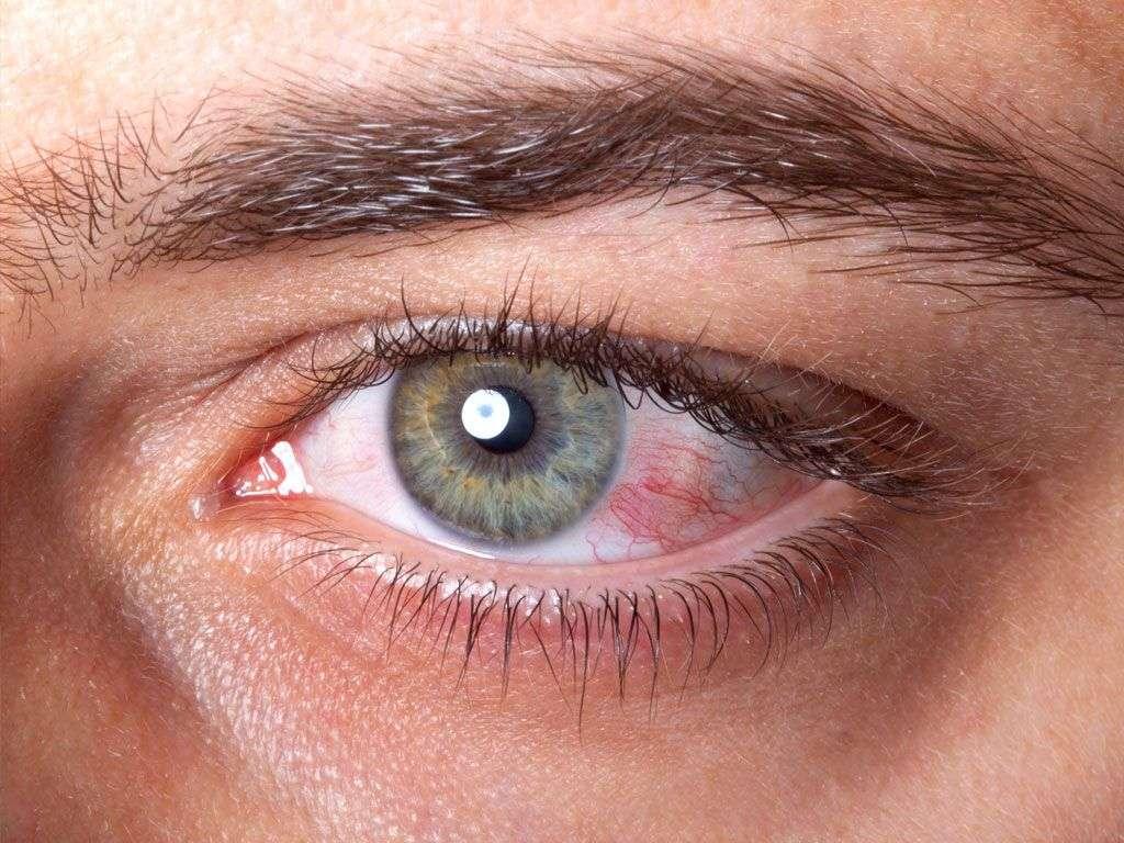 conjuntivitis vírica 2