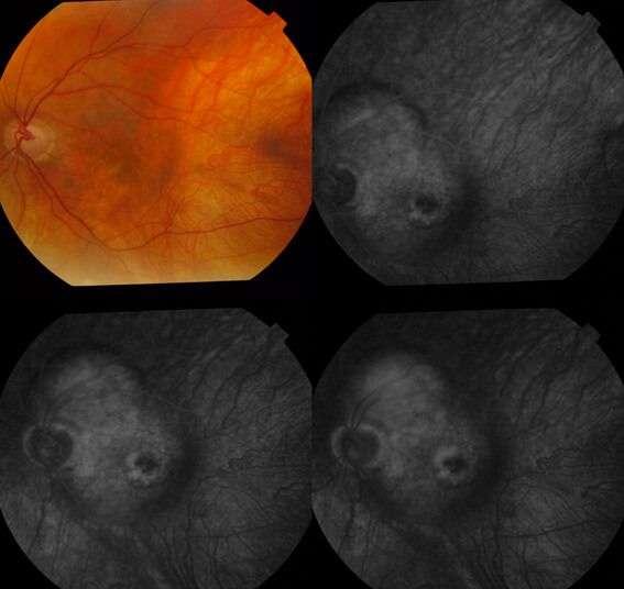 angiografía ocular 2