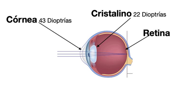 emetropía - dioptrías
