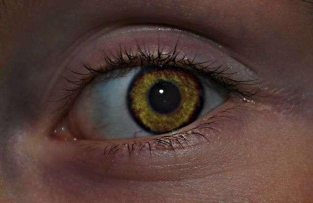 operación de ojo vago