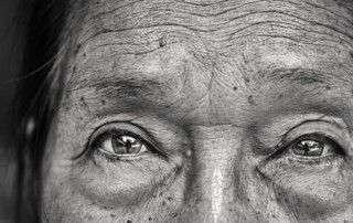 degeneración macular húmeda