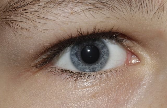 pupilas dilatadas o midriasis