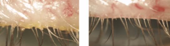 Glandulas de Meibomio