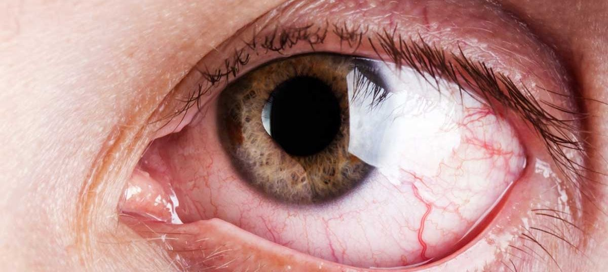 Como tratar el ojo seco