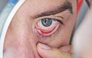 Tratamiento ojo seco con luz pulsada IPL